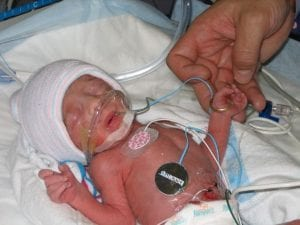 World Prematurity Day | New Orleans Moms Blog