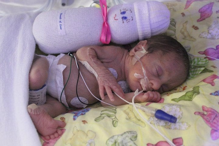 NICU sleeping