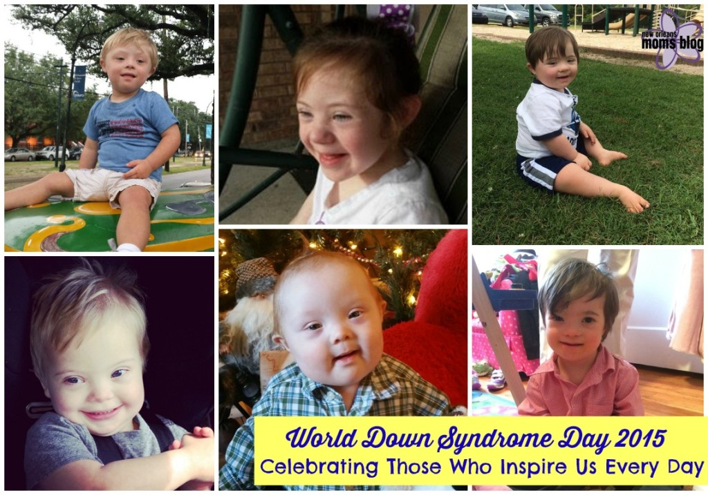 down syndrome featured
