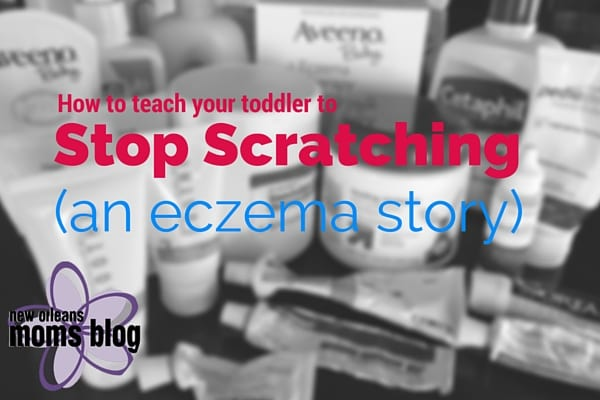 How to teach your toddler to stop scratching